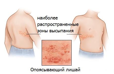 Опоясывающий лишай (герпес) - симптомы, диагностика, лечение