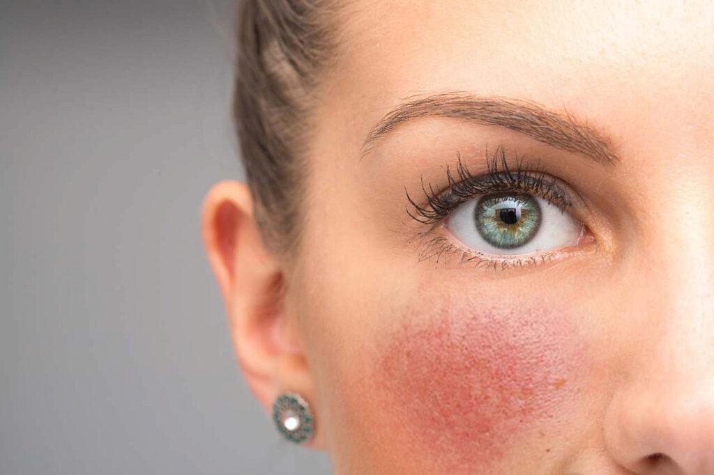 Выгоняем из краски! Как избавиться от купероза в косметологическом центре Этерия отзывы реальных клиентов!
